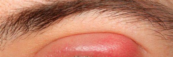 Orzaiolo nell'occhio: sintomi, cura e rimedi